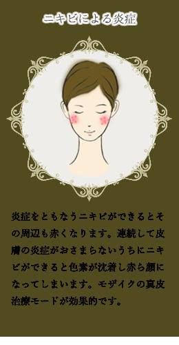 赤ら顔(3)