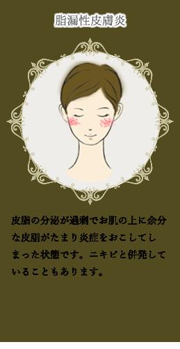 赤ら顔(1)