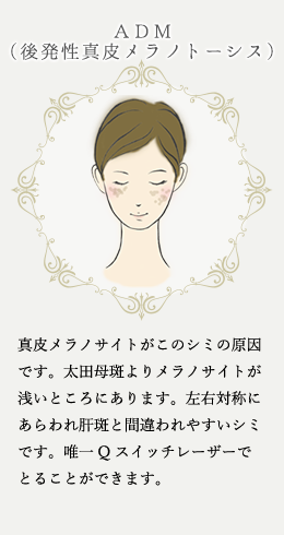 シミ・肝斑・くすみ(5)
