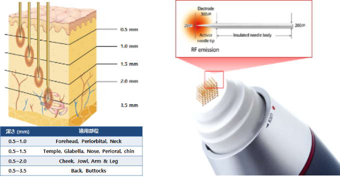 3D治療の説明図
