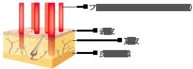 フラクショナルビームが肌に与える影響